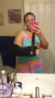 Me wearing the shoulder immobilizer and a dress.